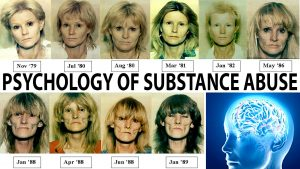 An image of women who over used drugs