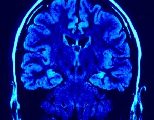 Barnard College_Neuroscience and Neurobiology_ Study To Determine Functioning of Brain