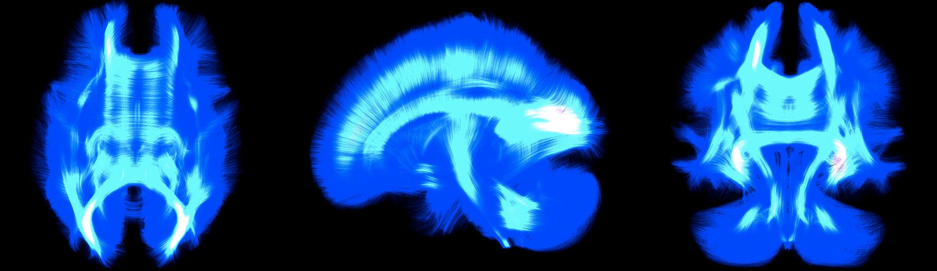 3 brains viewed under X ray