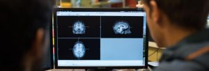 two people looking at brain scans