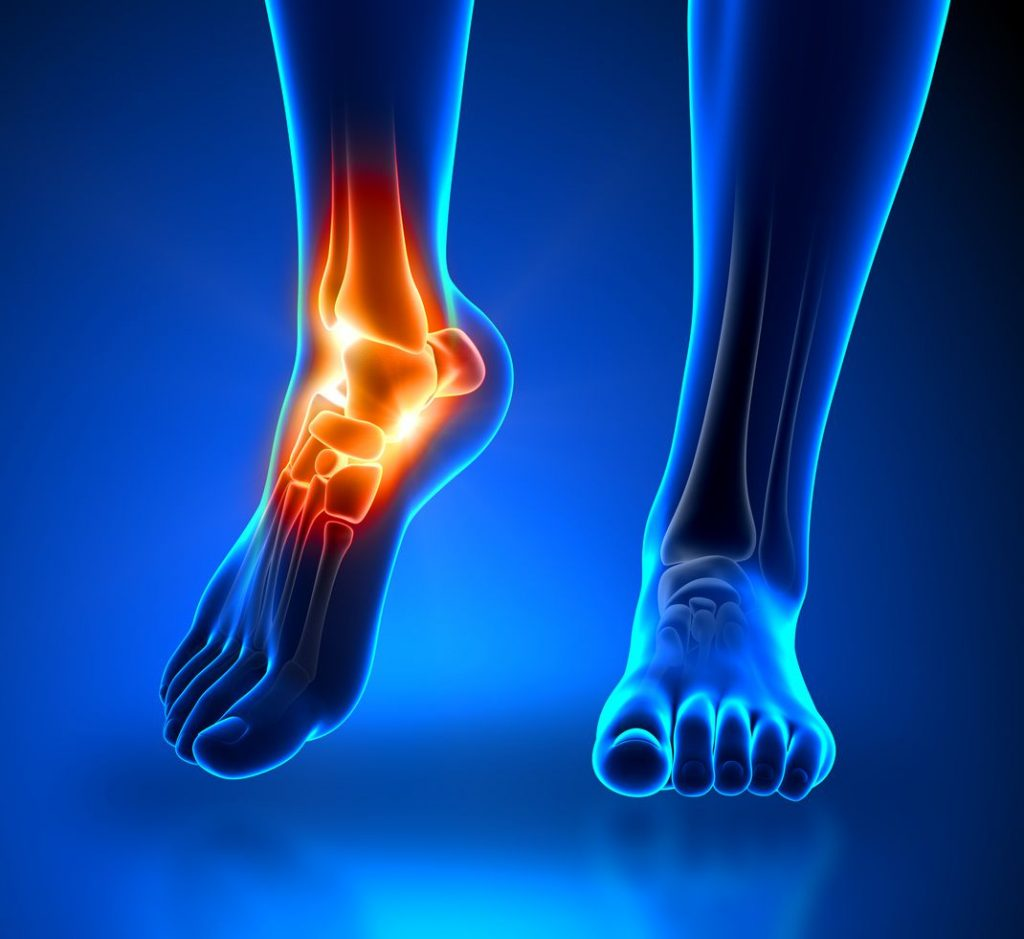 Ankle and foot screening image