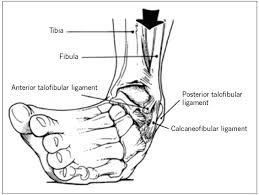 Common foot injuries athletes suffer