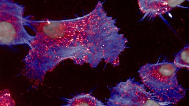The biology of cancer cell shape