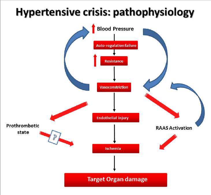 The pathophysiology of hypertensive crisis