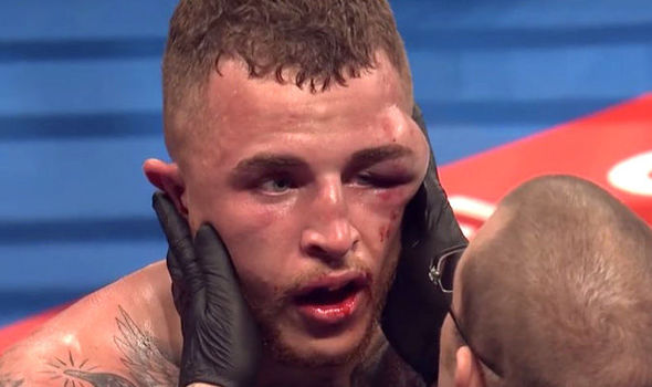 An athlete being checked out his eye injury